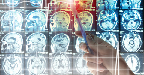 ABT-414 Shows Encouraging Phase I Trial Results in EGFR Amplified, Recurrent Glioblastoma